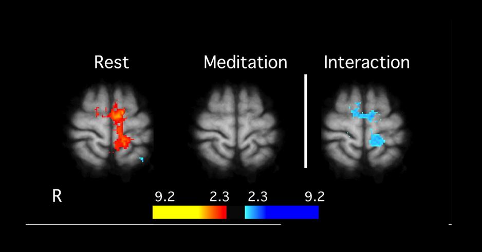 Understanding Brain Mechanisms Of >> Wellness Health Independence Mindfulness Center Whim C